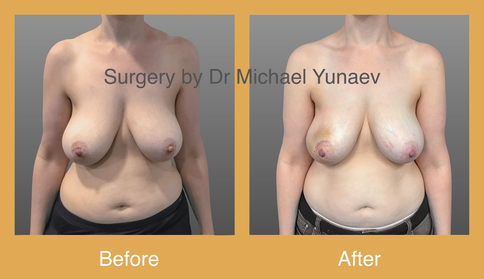 Right breast fibroadenoma excision 3