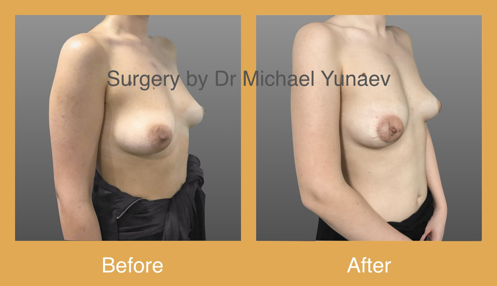 right benign breast lesion excision 2