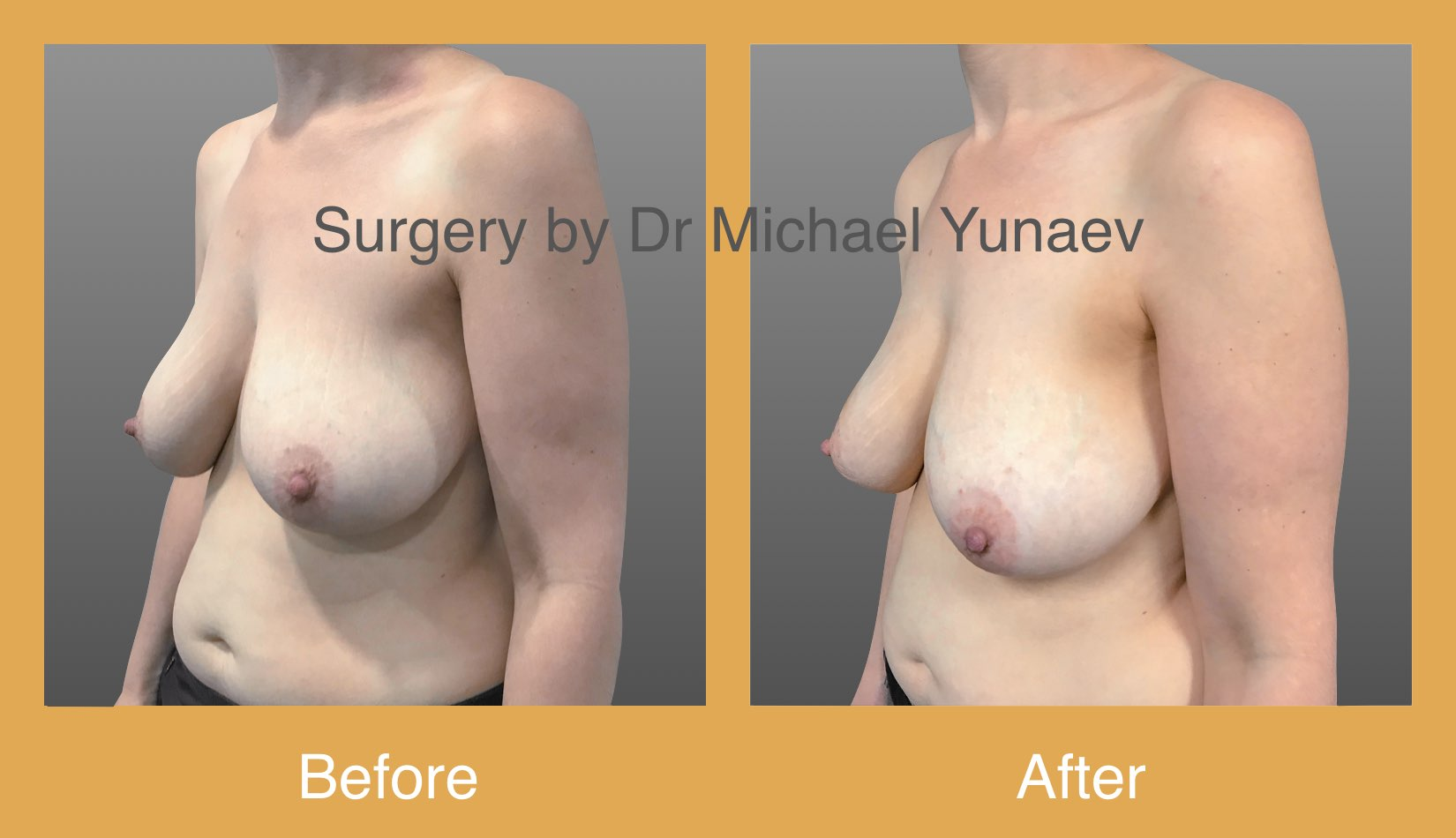 Right breast fibroadenoma excision 4