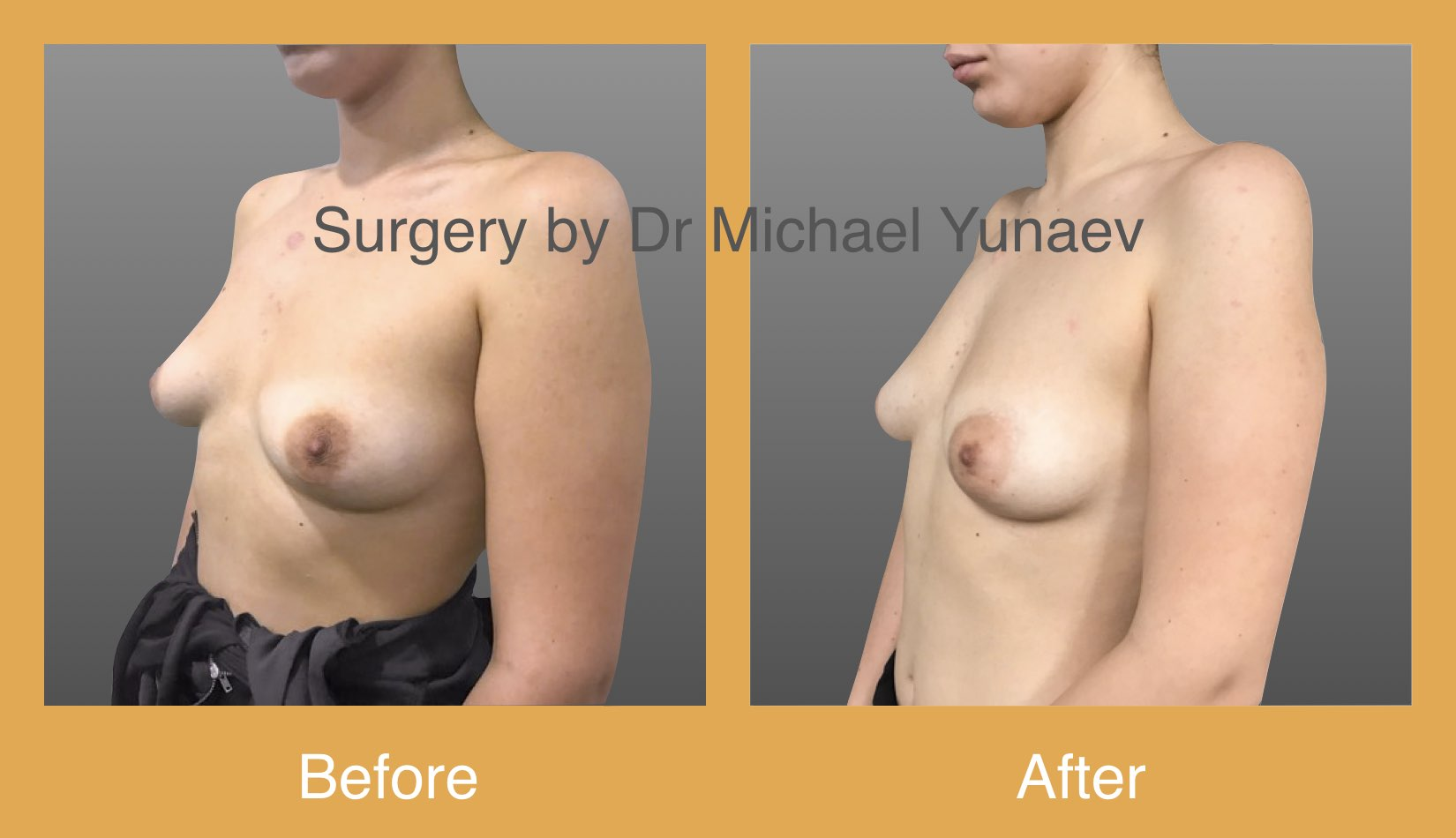 right benign breast lesion excision 4