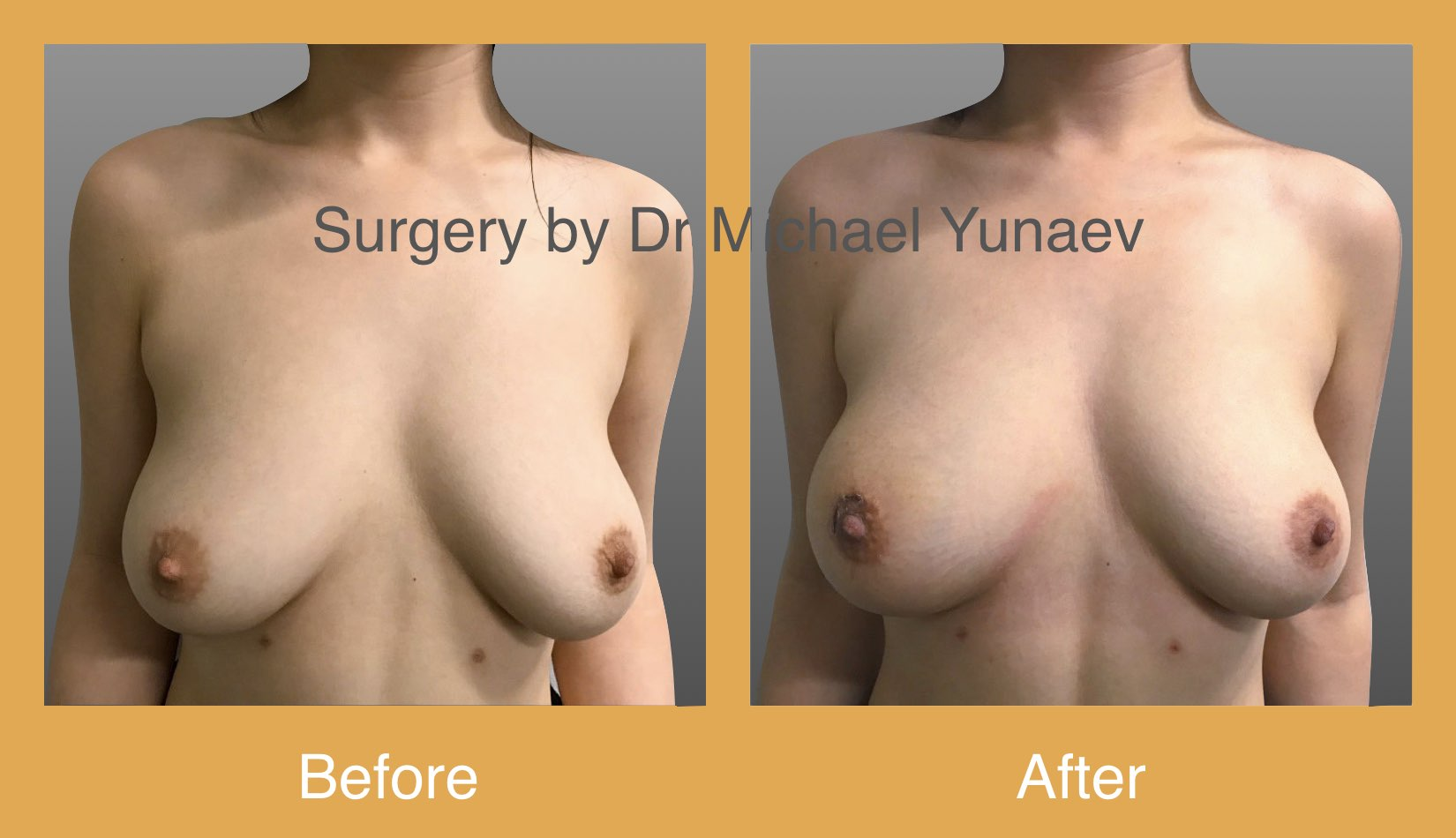 Right breast lesion excision and breast remodelling
