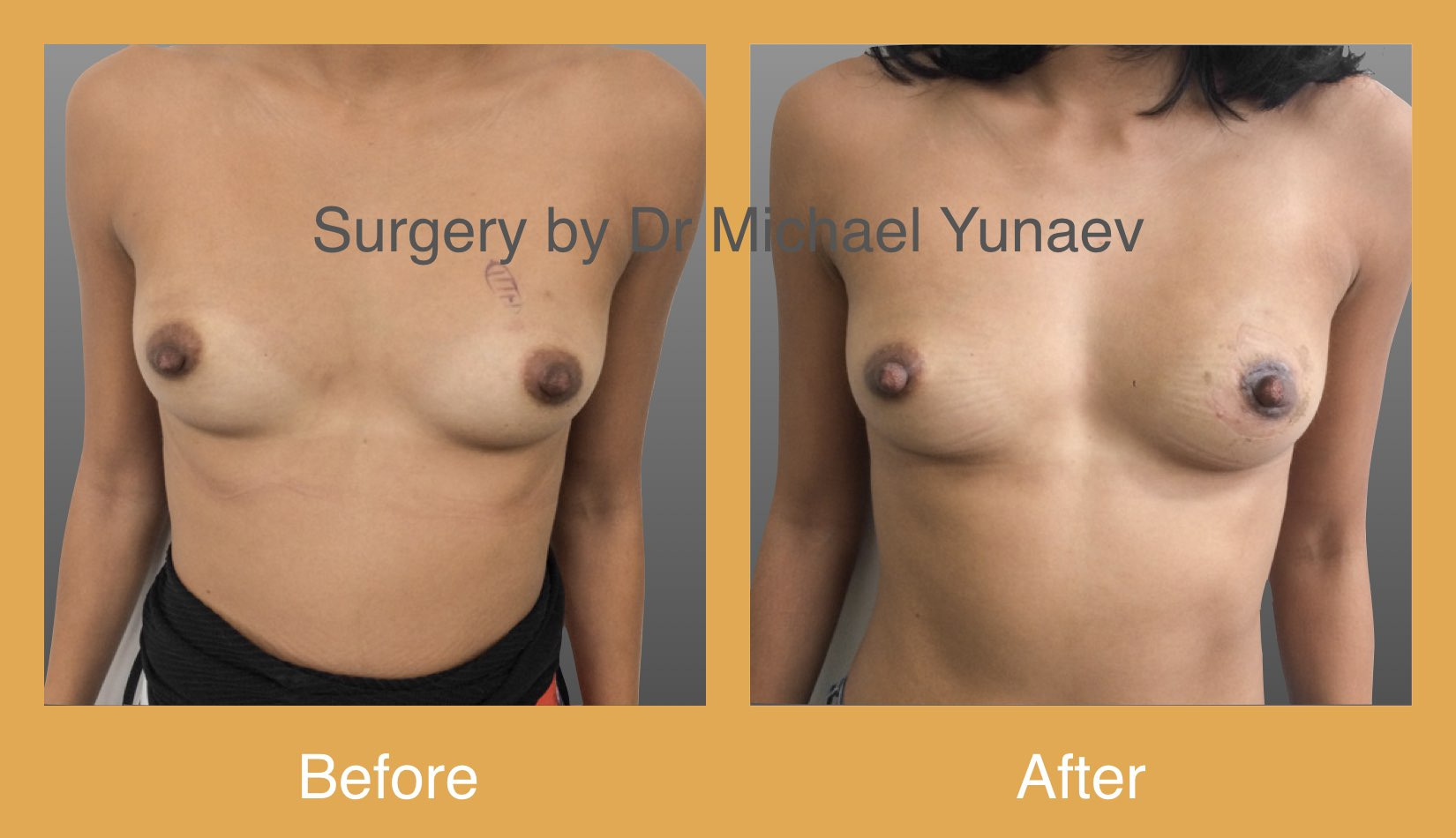 benign breast lesion excision