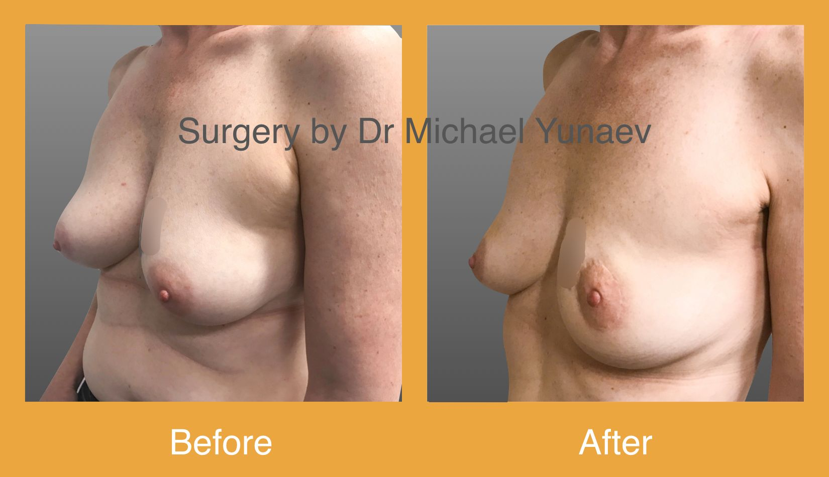 Left breast cancer 1.5 cm treated