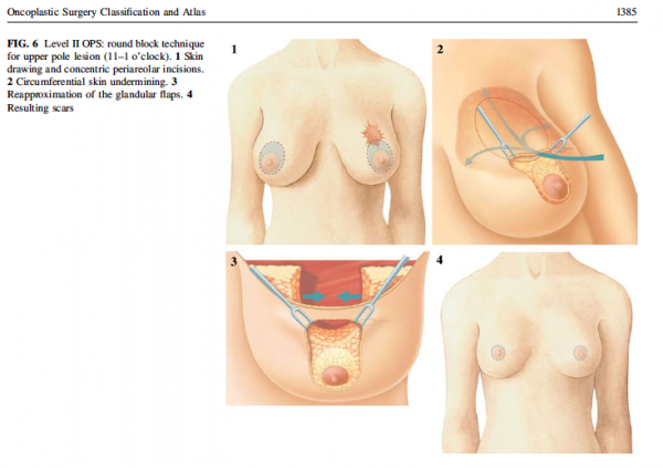 round block mammaplasty