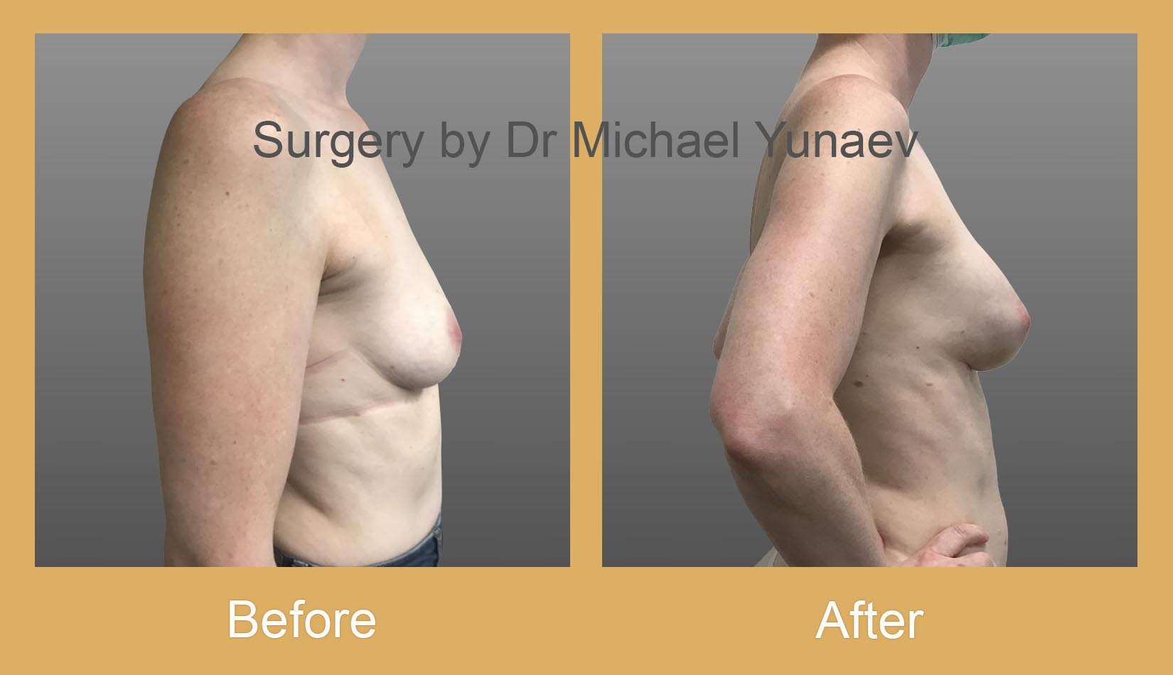 breast implant and fat grafting for breast cancer bella vista