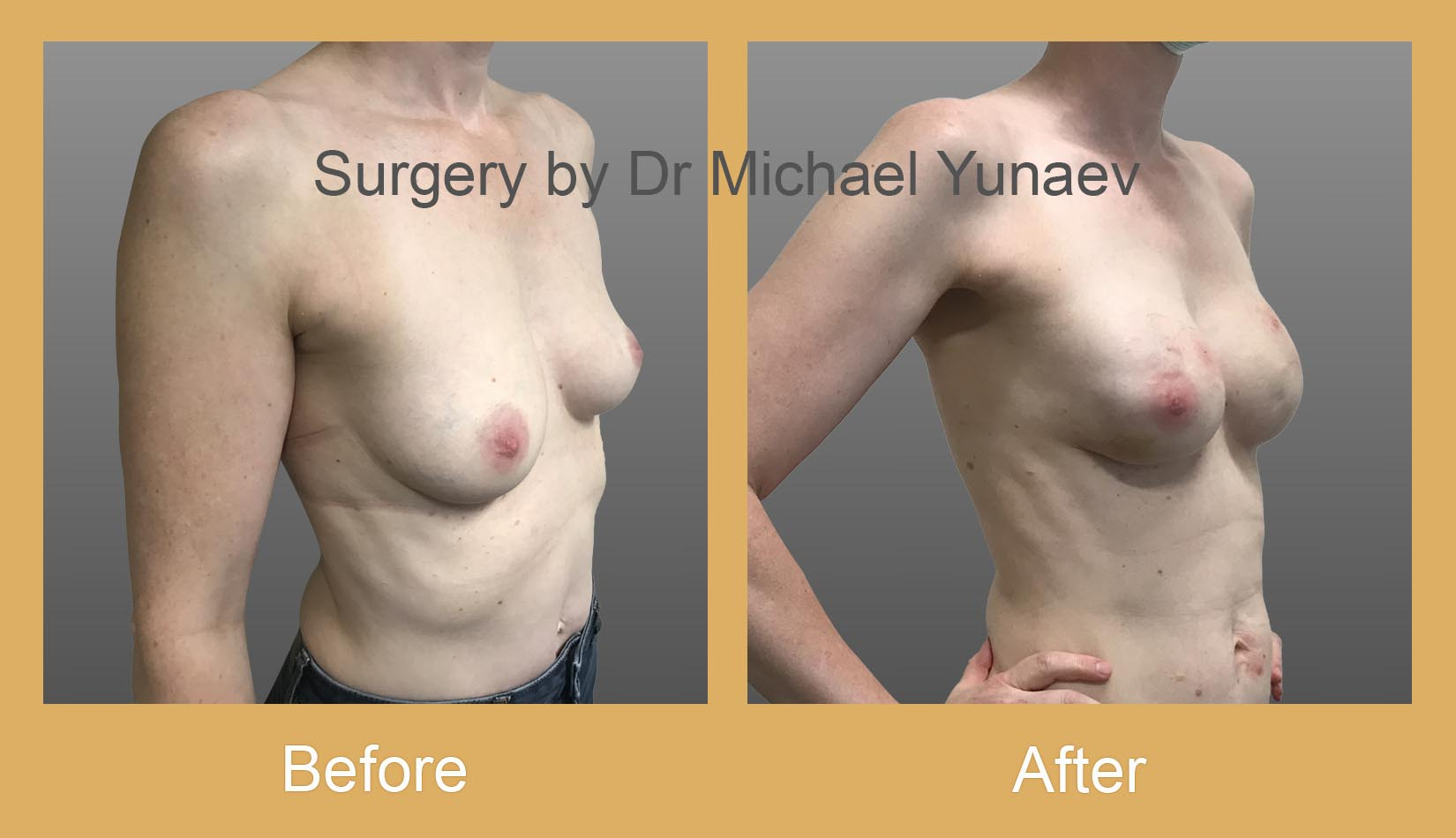 breast implant and fat grafting for breast cancer bowral