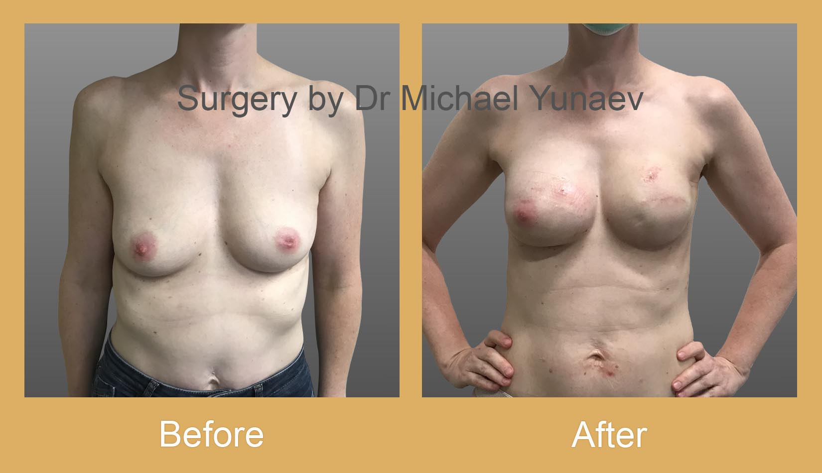 breast implant and fat grafting for breast cancer potts point