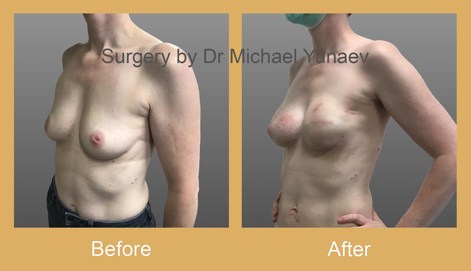 breast implant and fat grafting for breast cancer rozelle