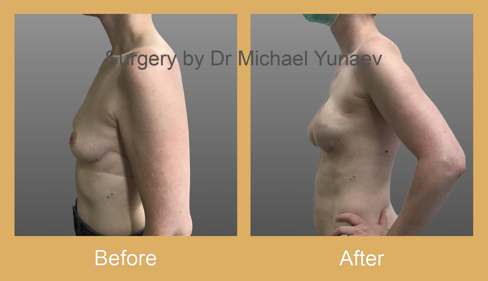 breast implant and fat grafting for breast cancer sydney