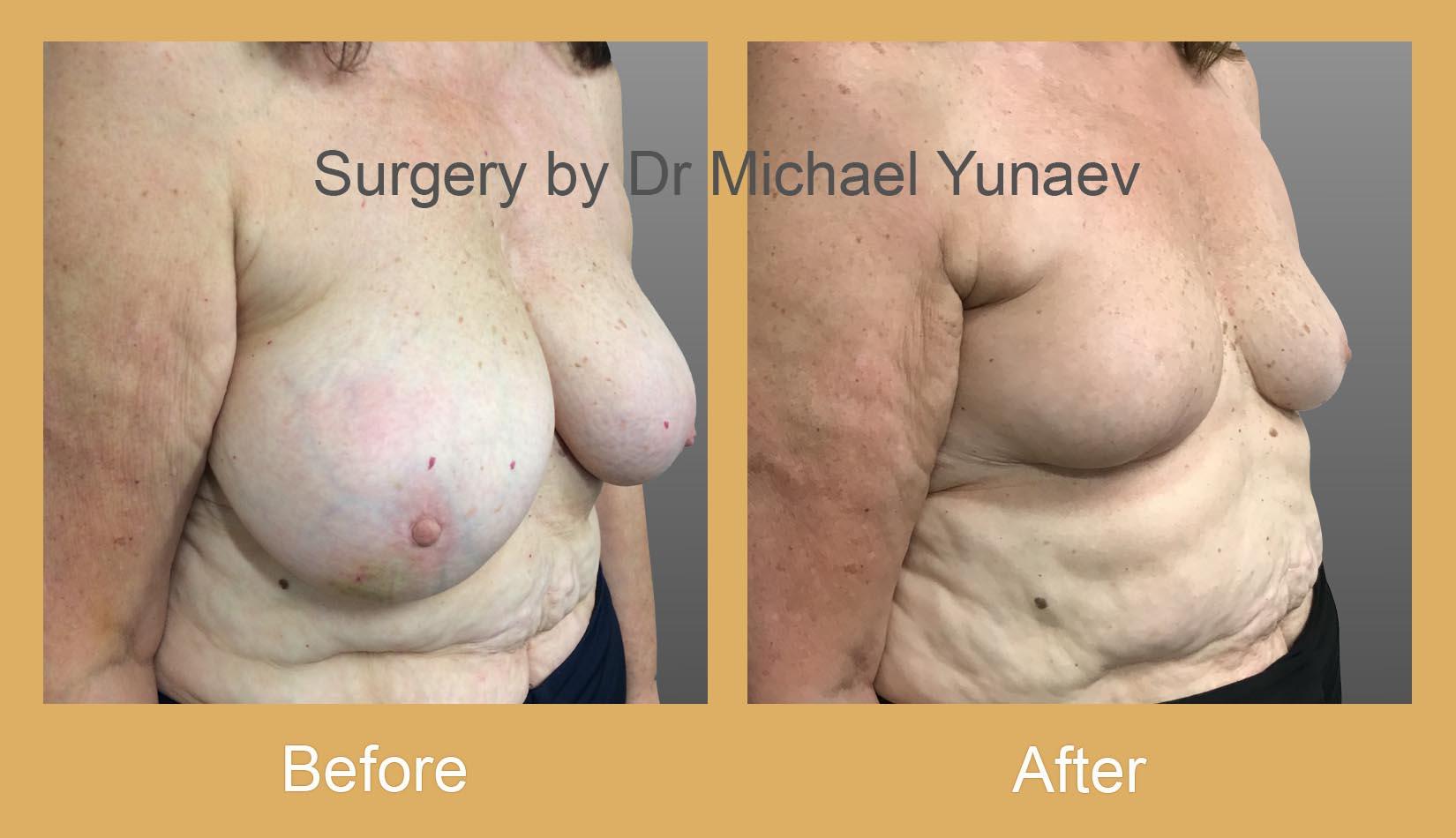 oncoplastic breast cancer procedure bella vista