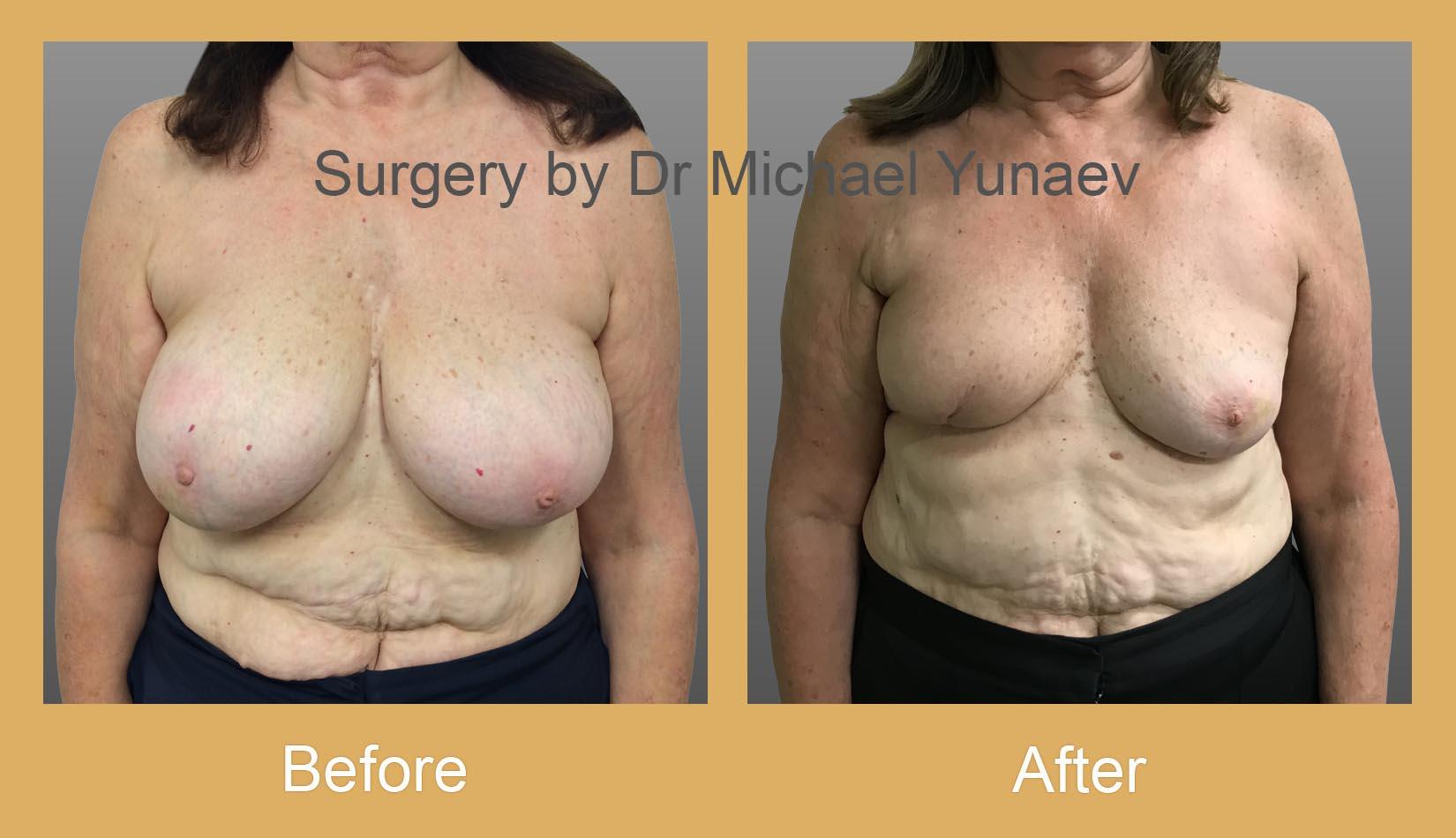 oncoplastic breast cancer procedure camperdown