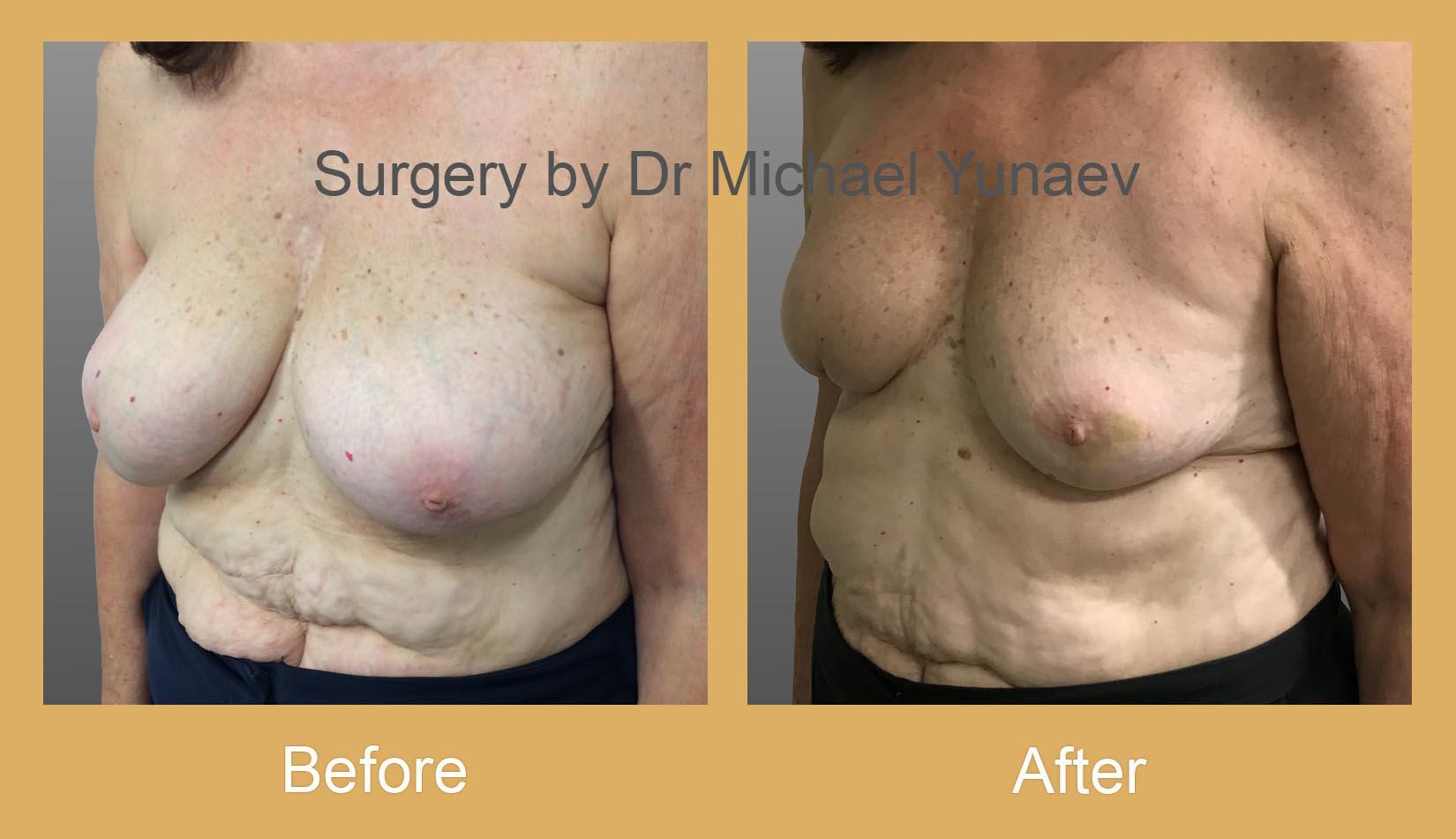oncoplastic breast cancer procedure sydney
