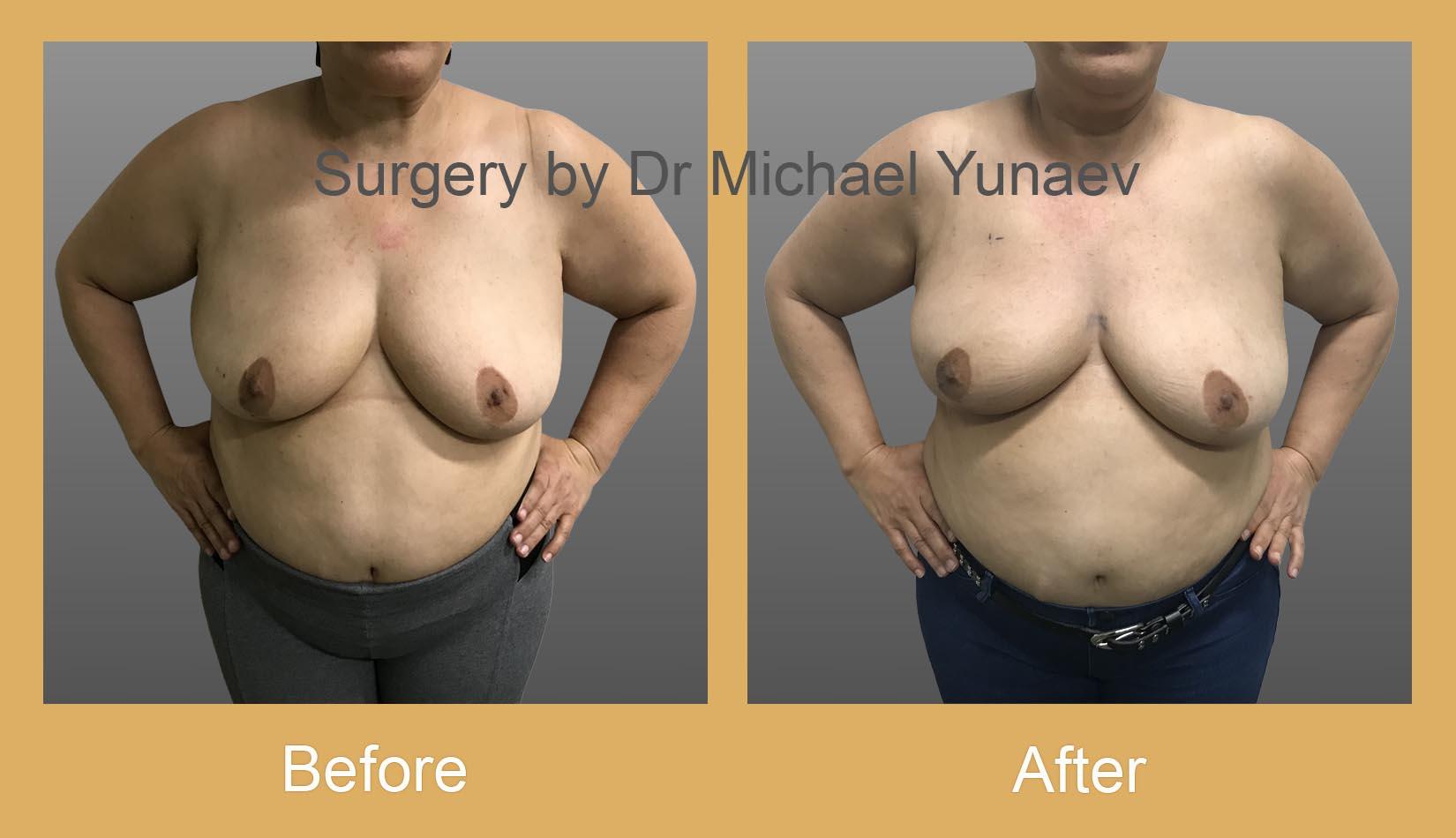 oncoplastic procedure for breast cancer camperdown