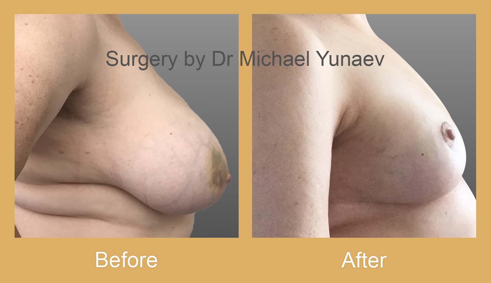 breast cancer oncoplastic procedure bella vista