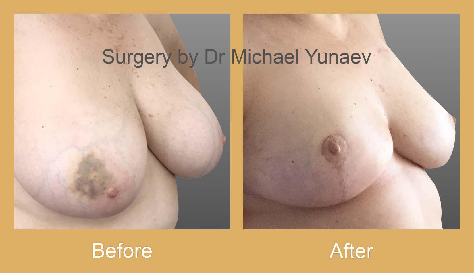 breast cancer oncoplastic procedure bowral