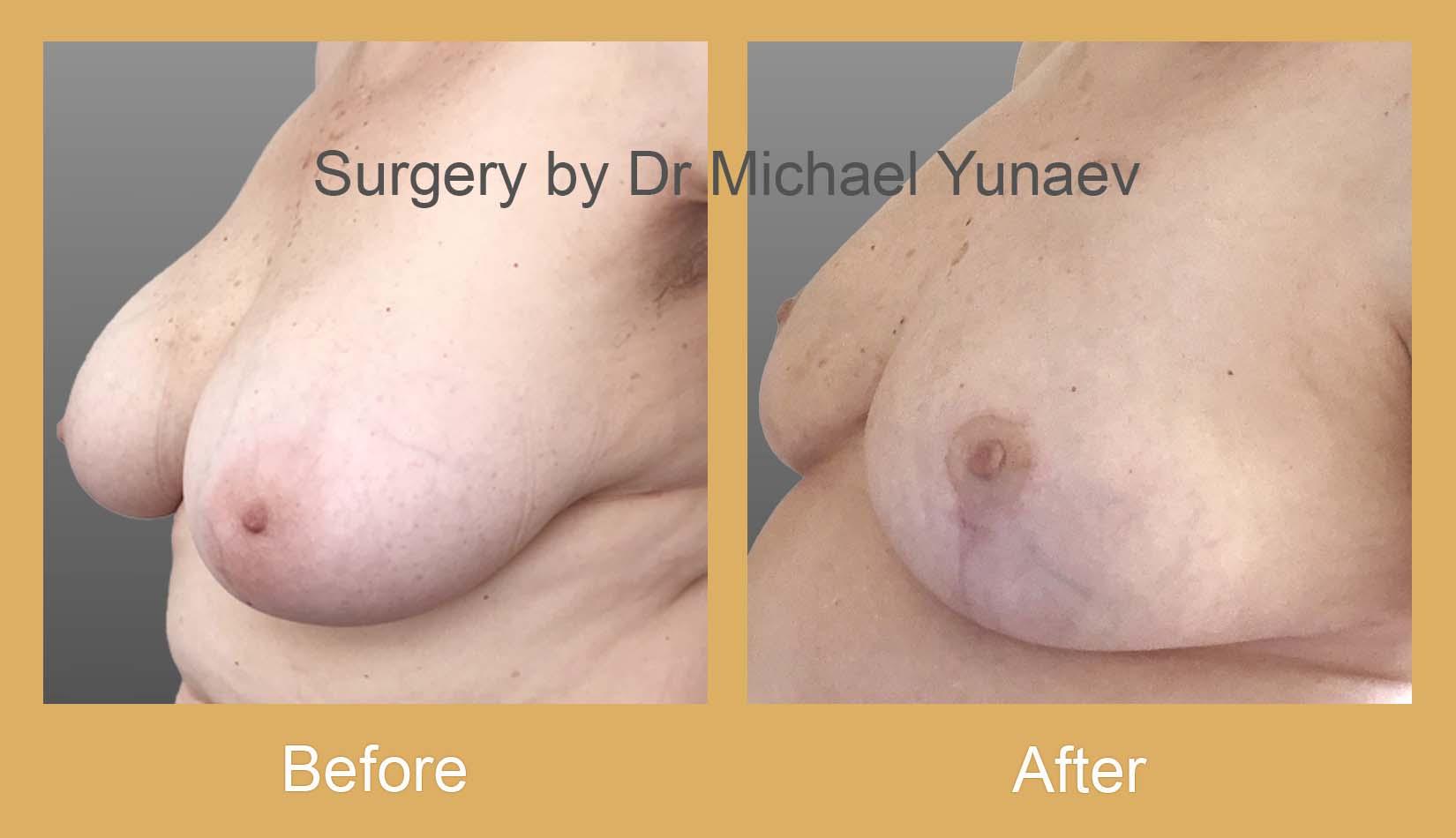 breast cancer oncoplastic procedure potts point